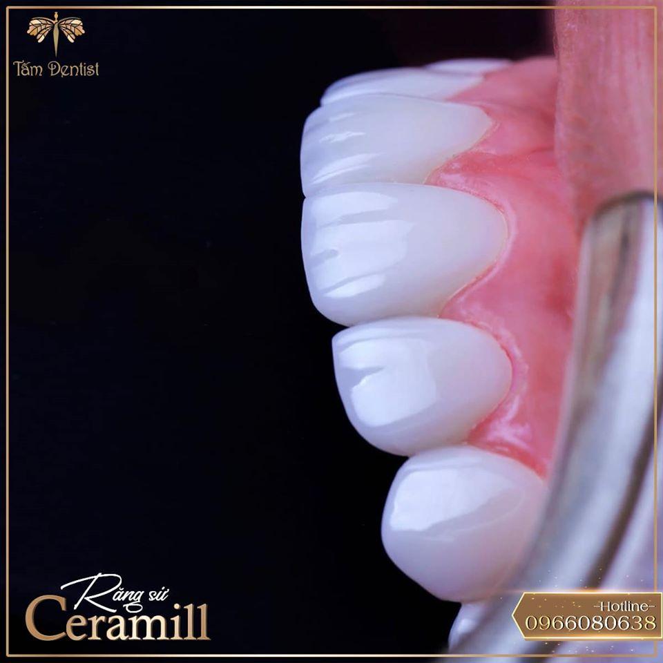 Bọc răng sứ ceramill