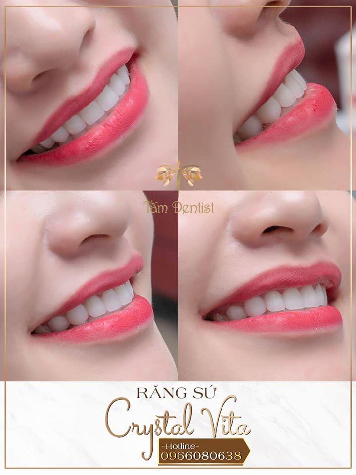 Bọc răng sứ crystal vita