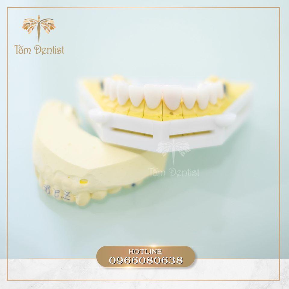 Răng sứ Zirconia