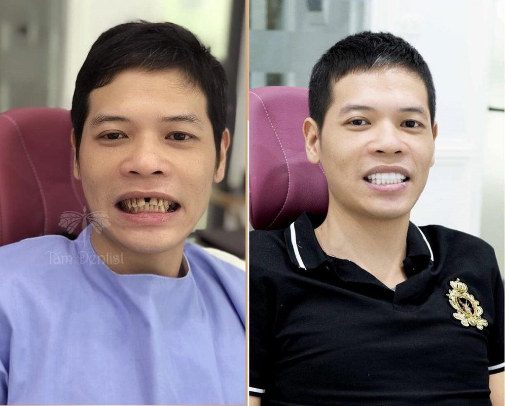 Ai nên bọc răng sứ