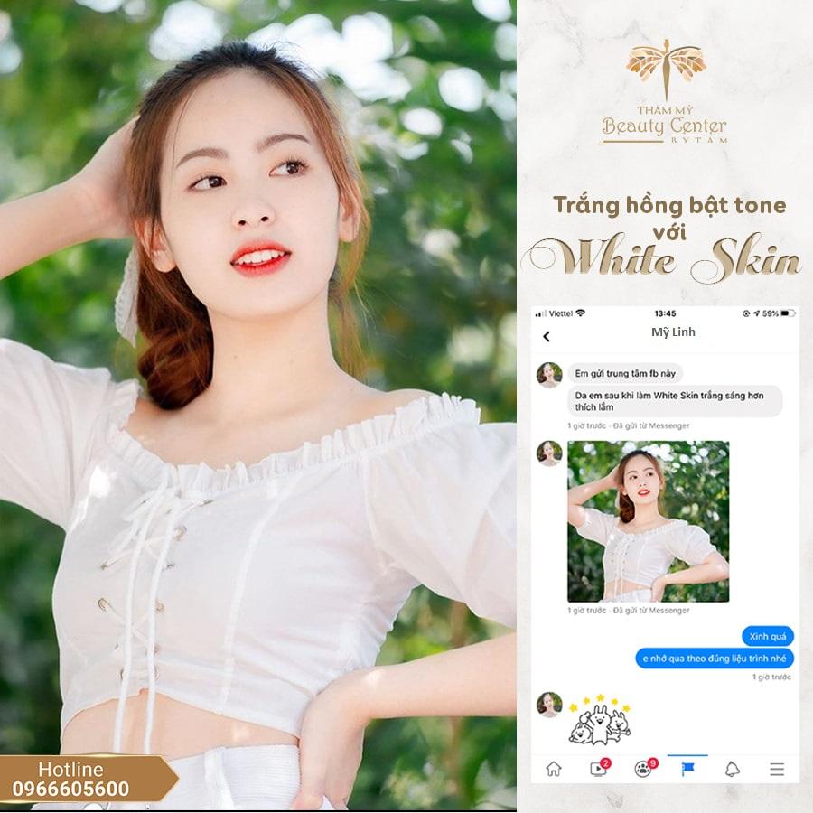 Cam Nhan Khach Hang truyền trắng