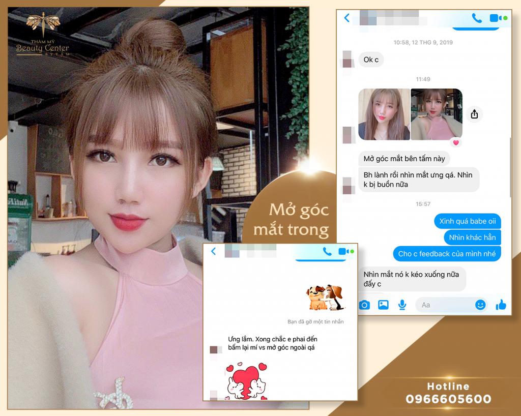 Feedback Khach Hang Mo Goc Mat 1