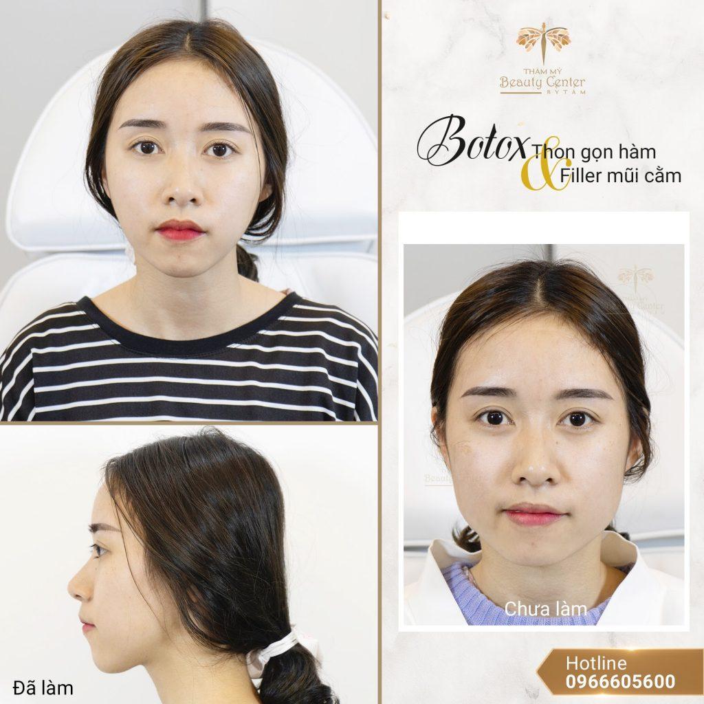 Feedback Khach Hang Tiem Botox Gon Ham 3