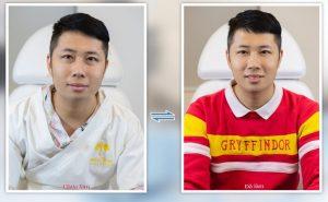 Feedback Khach Hang Tiem Botox Gon Ham 5 1024x631 1