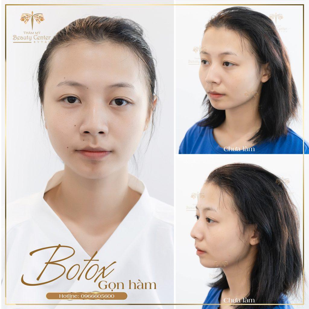 Feedback Khach Hang Tiem Botox Gon Ham 7