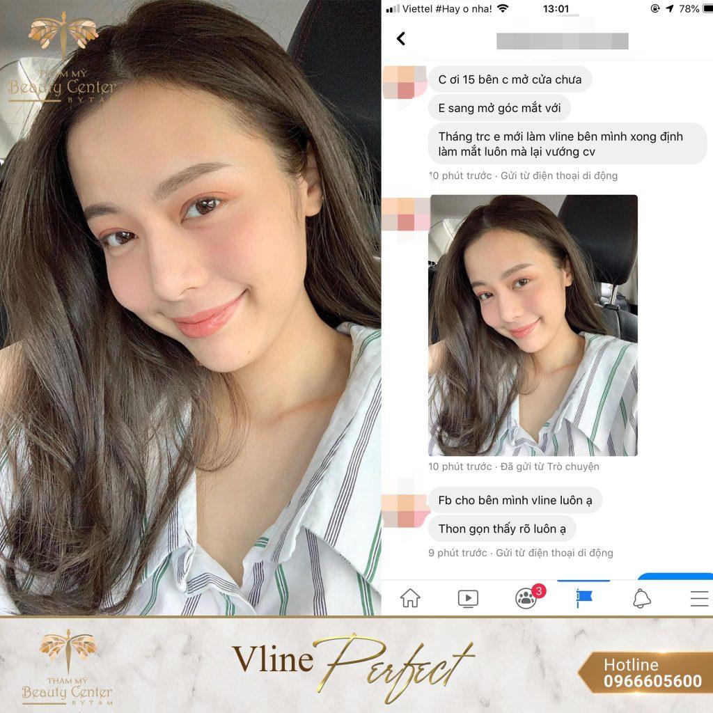 Feedback Khach Hang Vline Perfect 13