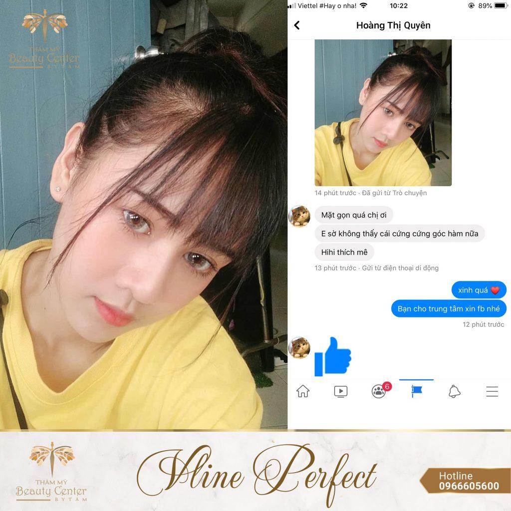 Feedback Khach Hang Vline Perfect 15