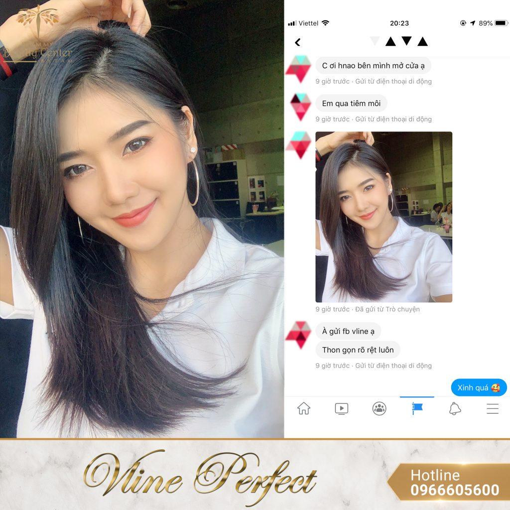 Feedback Khach Hang Vline Perfect 2