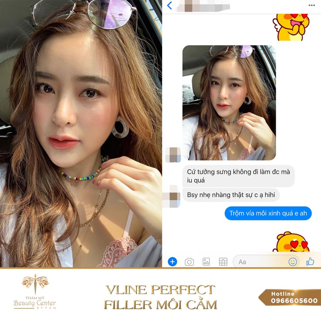 Feedback Khach Hang Vline Perfect 5