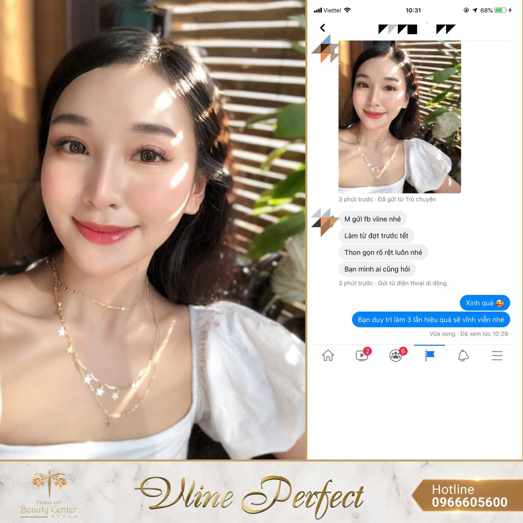 Feedback Khach Hang Vline Perfect 7