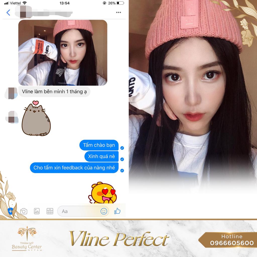 Feedback Khach Hang Vline Perfect 8