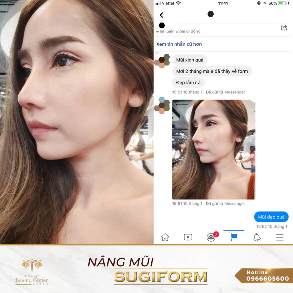 Feedback Nang Mui 10