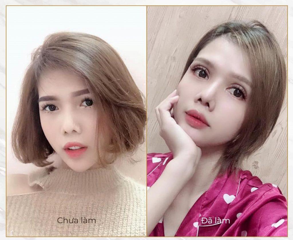 Mo Goc Mat Trong Ngoai Khong Seo 1024x842 2