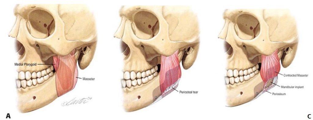 Phẫu thuật gọt hàm vline