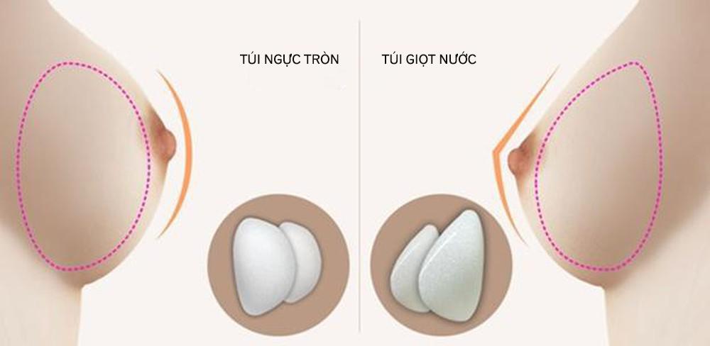 So Sanh Tui Nguc Tron Va Giot Nuoc