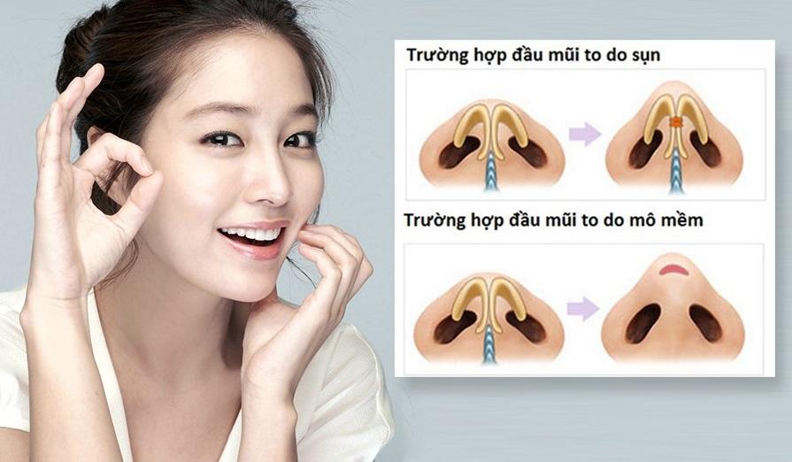 thu nhỏ đầu mũi