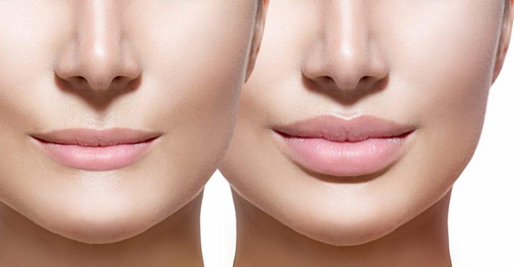Tiêm filler môi cần lưu ý
