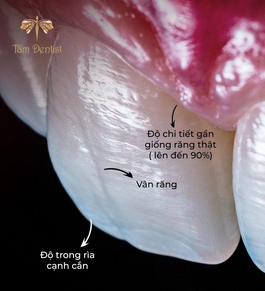 Ưu điểm của răng toàn sứ