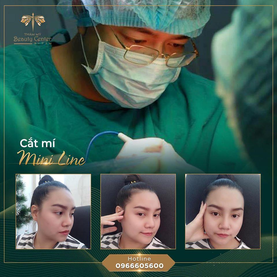 cắt mí không sẹo phụ thuộc vào bác sĩ