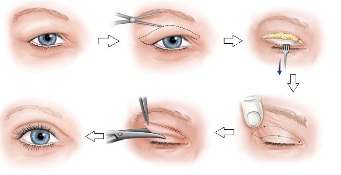 Bóc mỡ mắt là gì