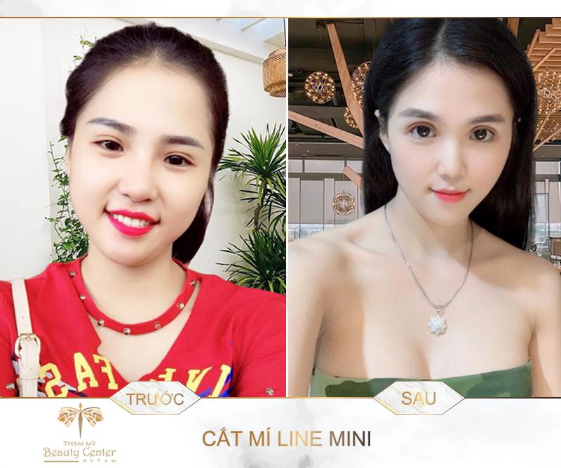 Cat Mi Mat Dep 1