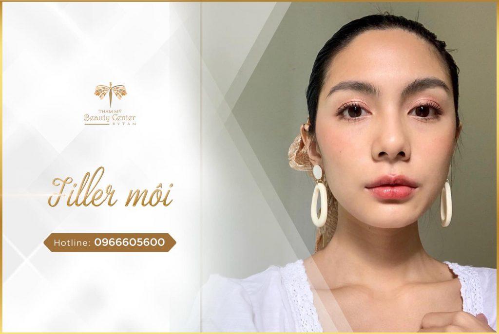 Filler Moi 1024x686 1