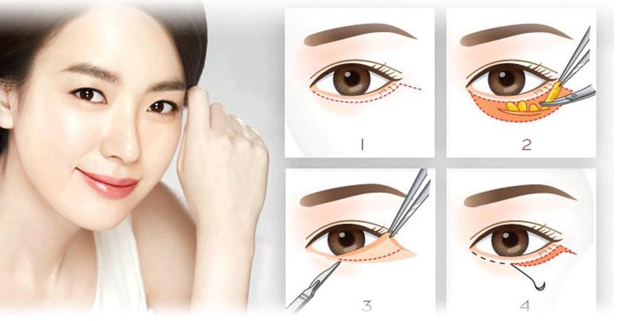 Lấy mỡ bọng mắt không sẹo