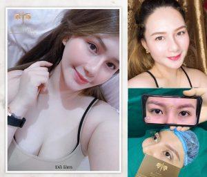 Mo Goc Mat Khong Seo 1024x875 3