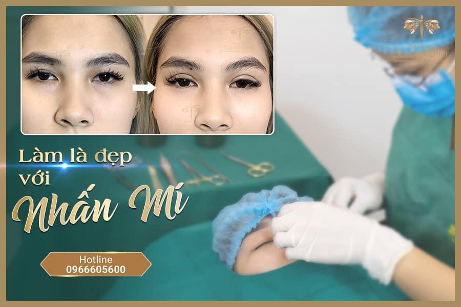 Nhan Mi Baby 1 3