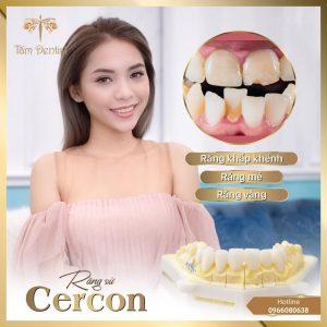 Rang Su Cercon 1024x1024 3