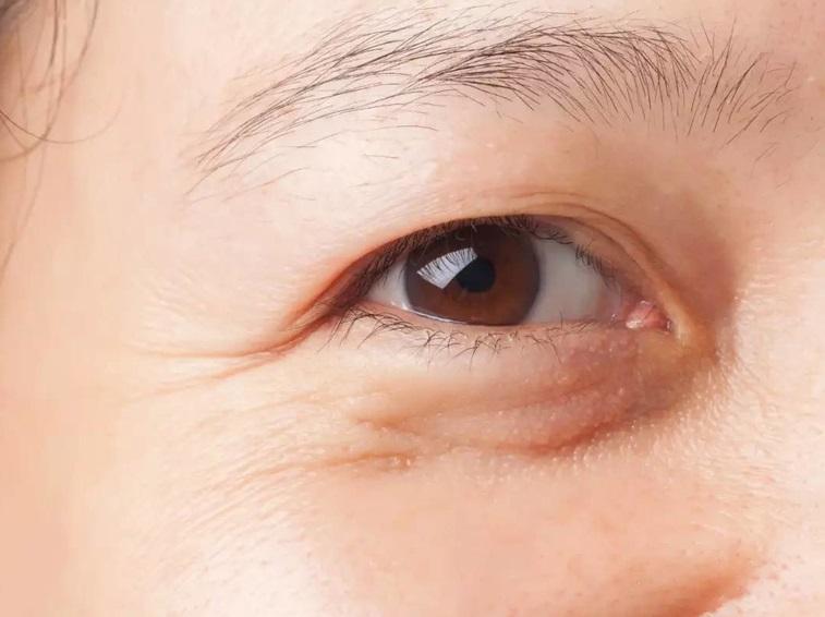 thế nào là mỡ mắt