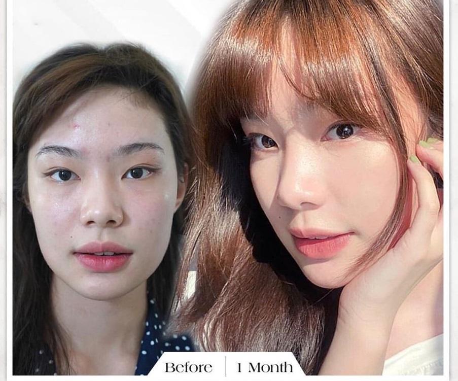 Tiem Botox Giu Duoc Bao Lau