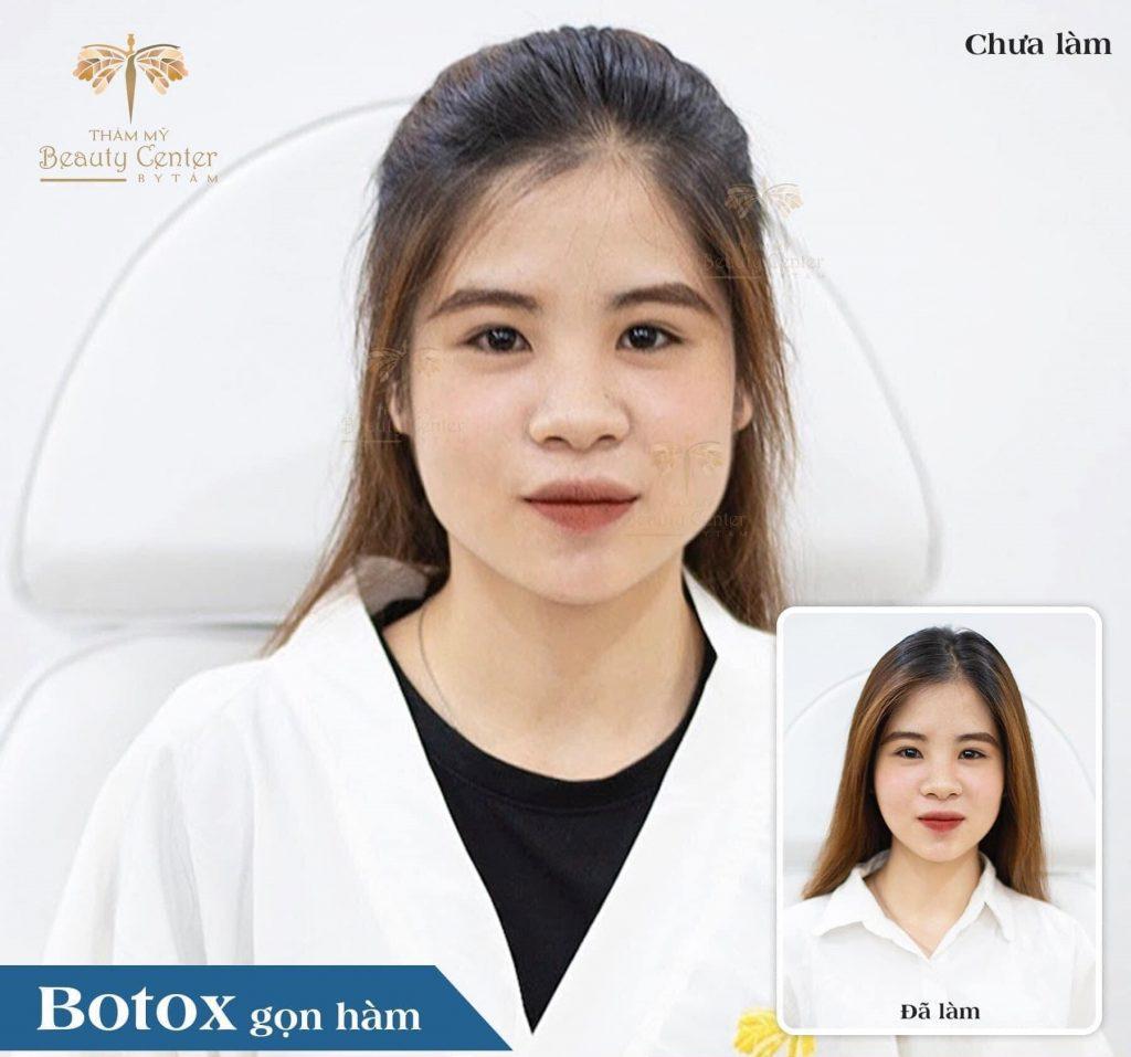 tiêm botox gọn hàm