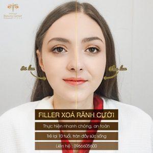 Tiem Filler Day Ranh Cuoi 1024x1024 3