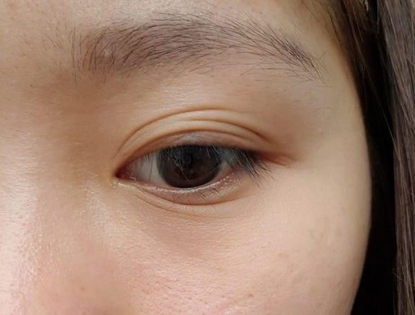 Mắt 3 mí là gì