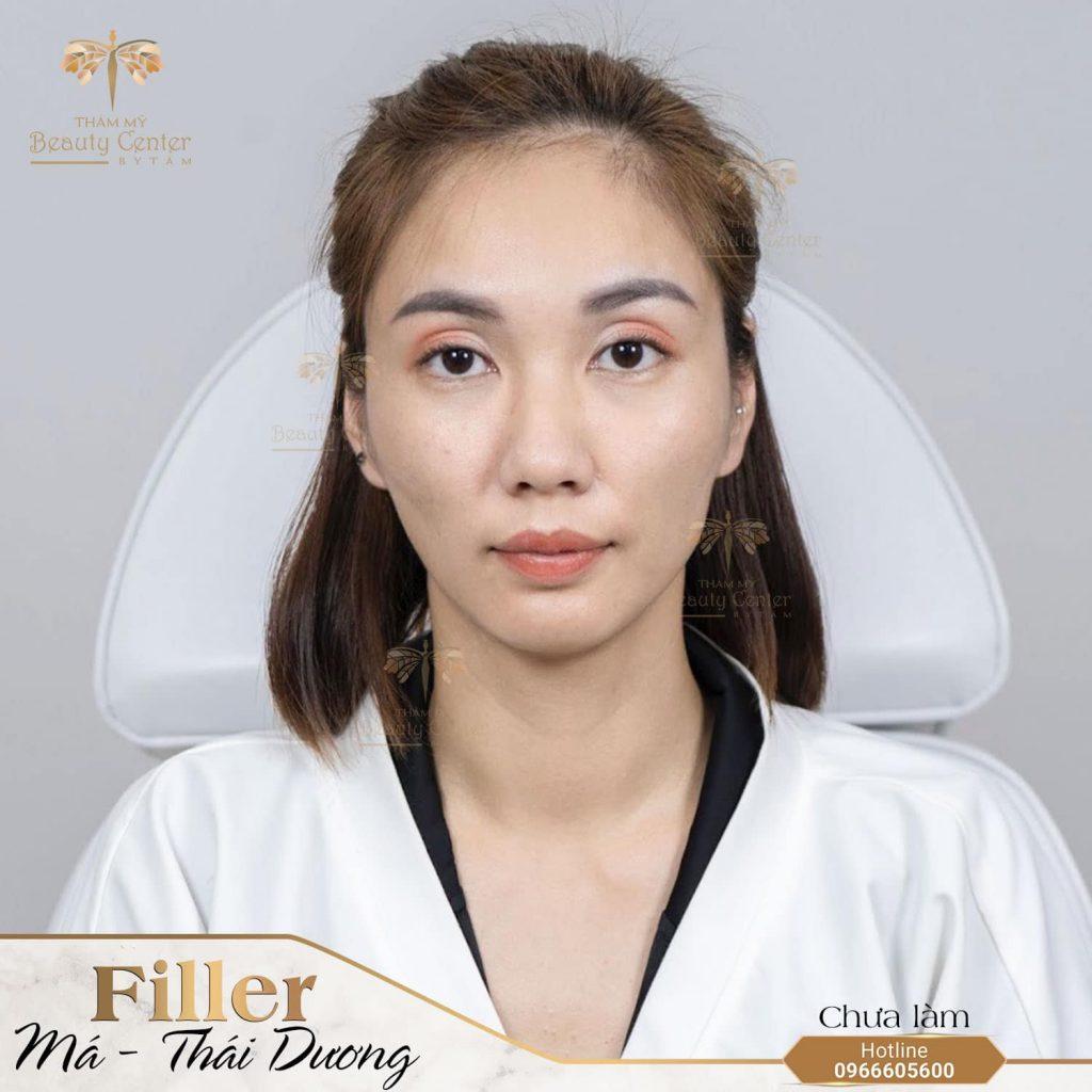 Thai Duong Hom 1024x1024 1