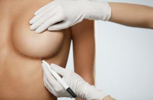 Ưu điểm nâng ngực nội soi