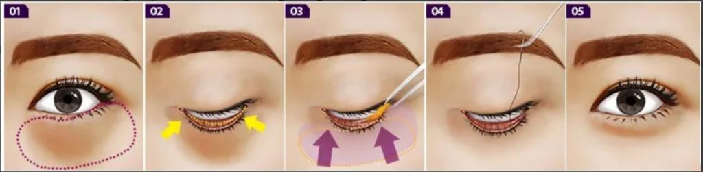 Lấy Mỡ Bọng Mắt- Giải pháp khắc phục bọng mắt to hiệu quả