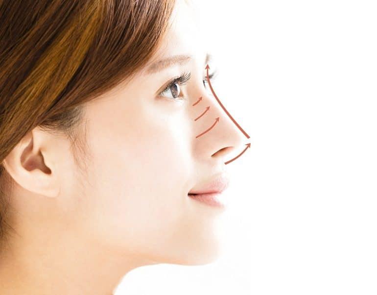 Những lưu ý khi nâng mũi bằng chỉ