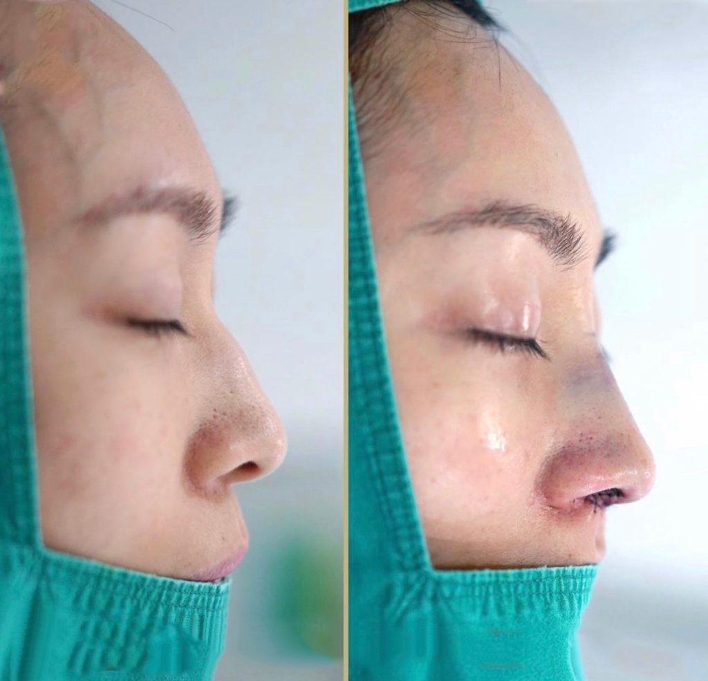 khách hàng nâng mũi surgiform tại thẩm mỹ beauty center by tấm