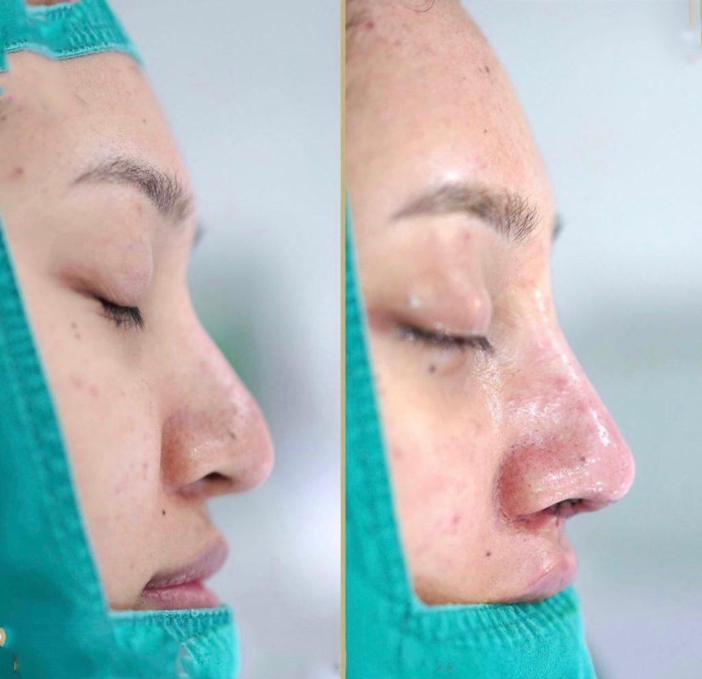 nâng mũi surgiform có ưu điểm gì