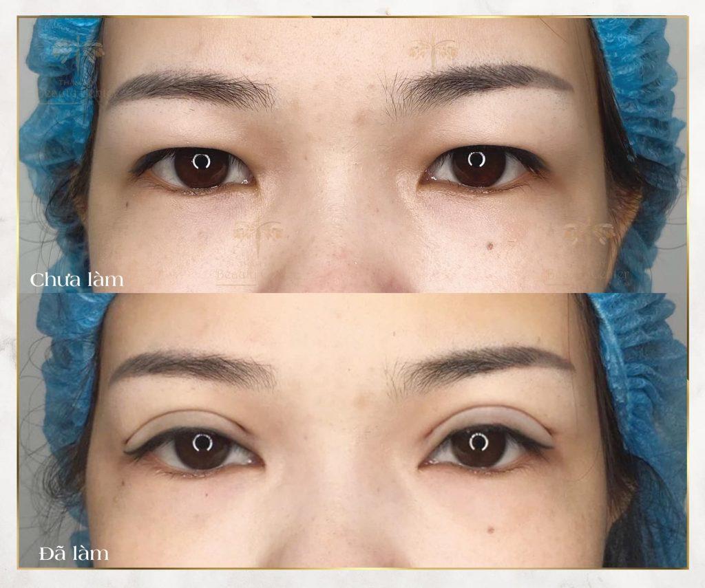 lấy mỡ mí mắt giúp mắt 2 mí