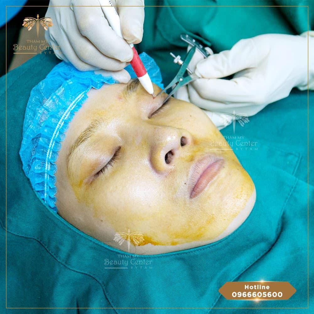 quy trình lấy mỡ mí mắt tại Tấm
