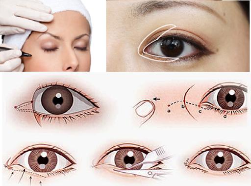 Tiểu phẫu mở góc mắt trong