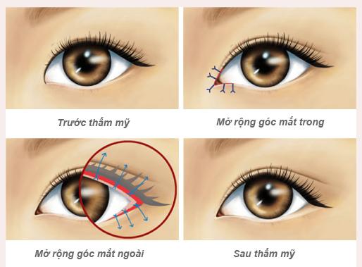 Tiểu phẫu mở góc mắt ngoài