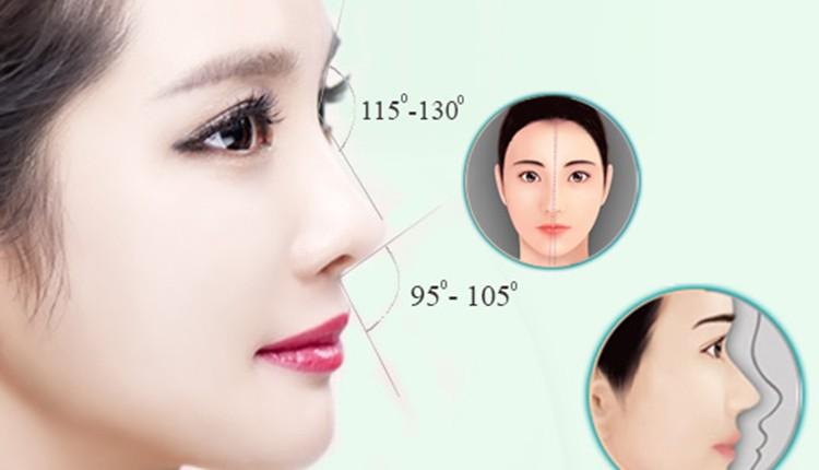 Nâng mũi L-line là gì?