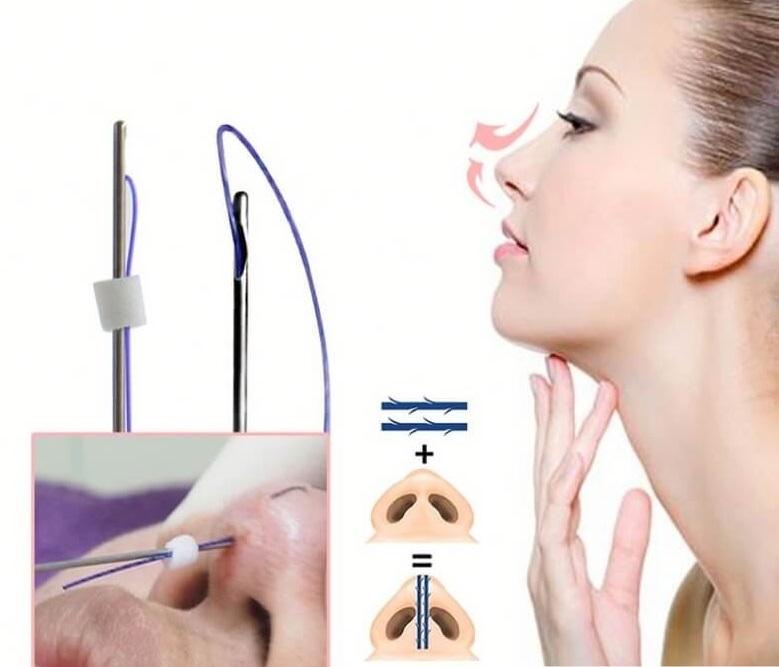 những biến chứng có thể xảy ra khi nâng mũi