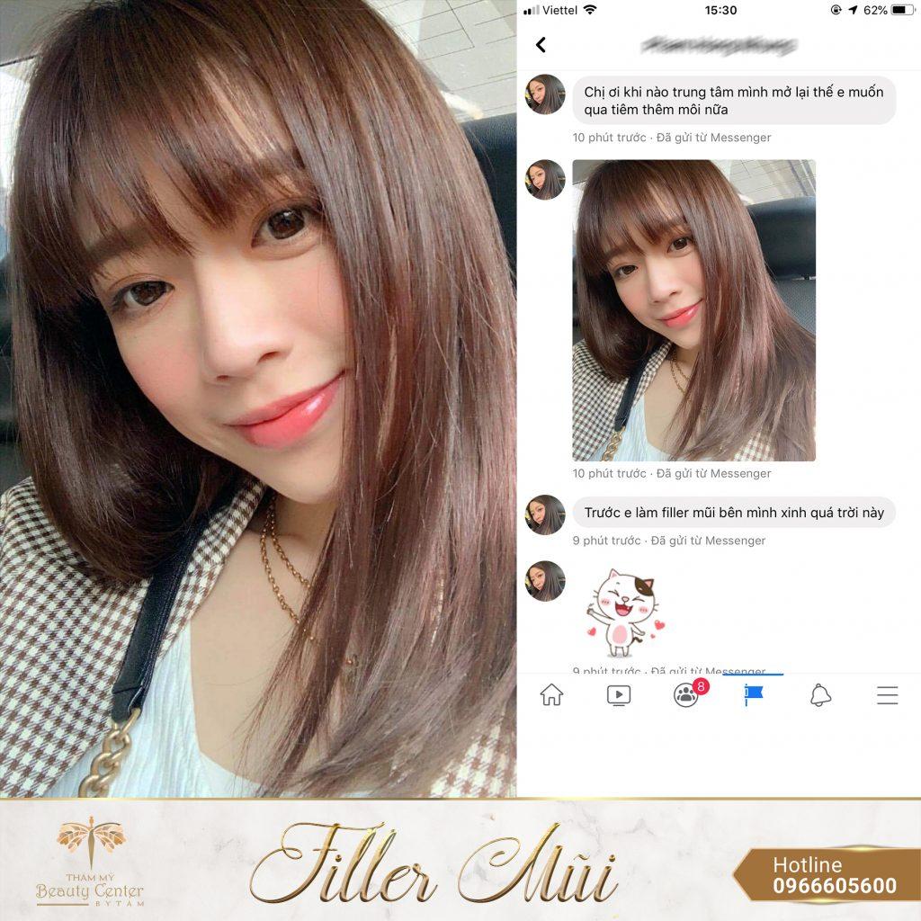 Filler mũi - Thẩm Mỹ Beauty Center By Tấm
