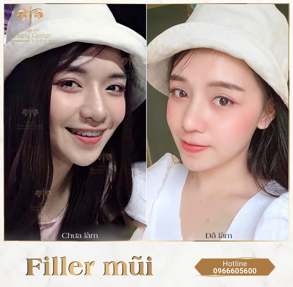 Filler mũi - Thẩm Mỹ Beauty Center By Tấm