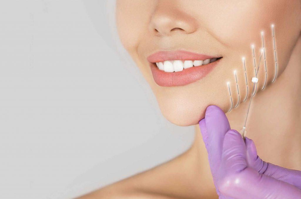 quy trình tiêm botox